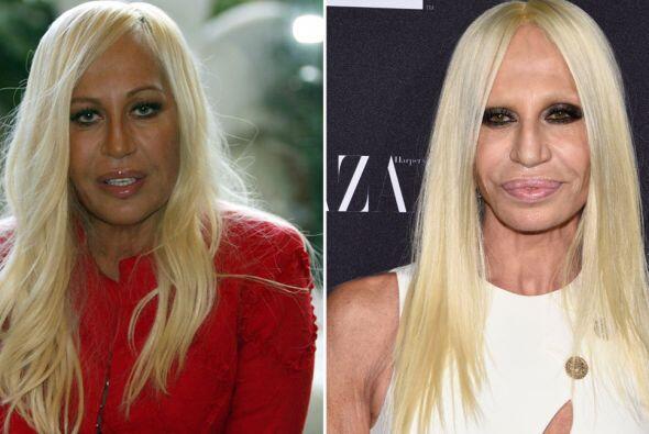 Finalmente tenemos a Donatella Versace, quien jamás tuvo uno de los rost...
