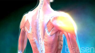 Fibromialgia: radiografía de una dolorosa enfermedad