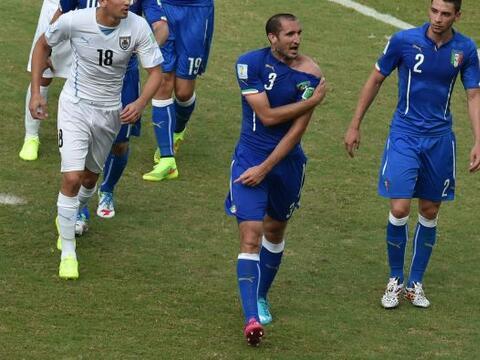 En el juego de hoy el delantero Luis Suárez, de Uruguay, fue acus...