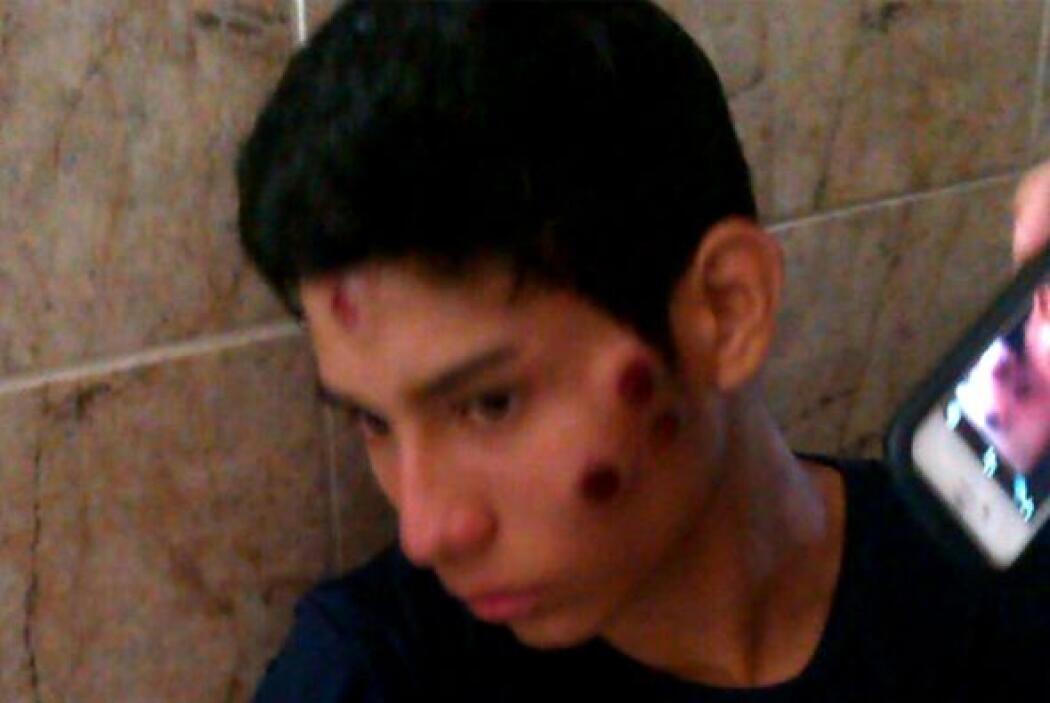 Corrió la sangre en las calles de Venezuela d58caba8ca8e43d5a80abcadf6aa...