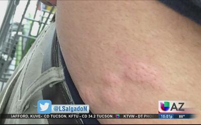 Un hombre fue mordido por chinches en Walmart