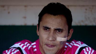 Keylor Navas queda fuera de la Copa Oro por lesión en el tendón de aquil...