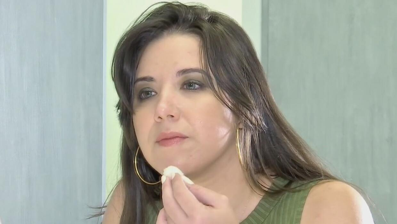 Remedios naturales para eliminar las manchas de la cara