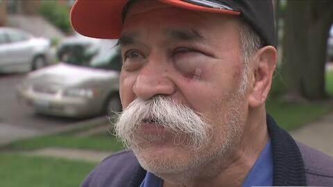 Habla el hombre de 69 años que se defendió con una navaja en el presunto...