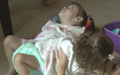 Las siamesas Erika y Eva fueron se recuperan satisfactoriamente luego de...