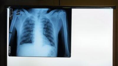 La impactante radiografía que le tomaron en el hospital muestra que la v...