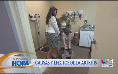¿Cómo mejorar su estilo de vida si vive como artritis?