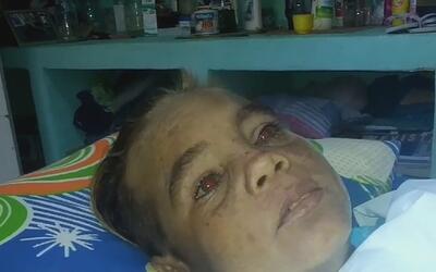 Madre de un niño cubano pide ayuda a EEUU para hacerle una cirugía que p...