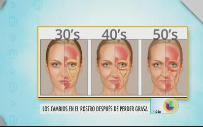 Cambios en el rostro después de la pérdida de grasa