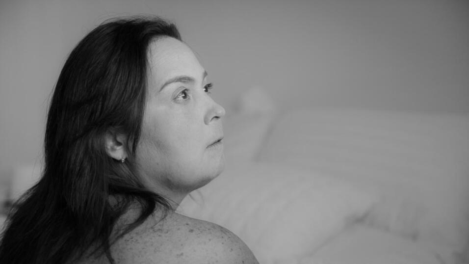 Sindactilia, la condición de la mujer que se creía sirena, y otros mitos...