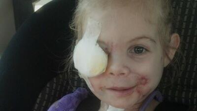 KFC se disculpó por expulsar del restaurante a niña atacada por tres per...