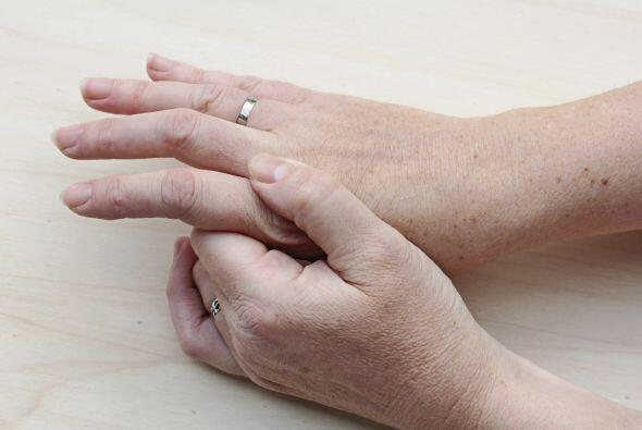 Si notas una sequedad más severa en uñas y piel se puede d...