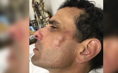 Líder opositor de Venezuela Henrique Capriles tuvo que ser sacado de una...
