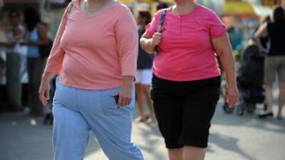 Los $153,000 millones perdidos en EU a causa del sobrepeso, obesidad y e...