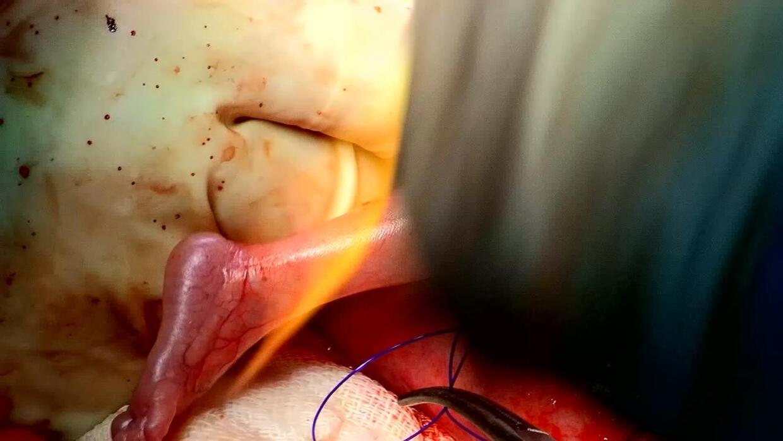 El feto de un bebé es operado y regresado al útero de su madre