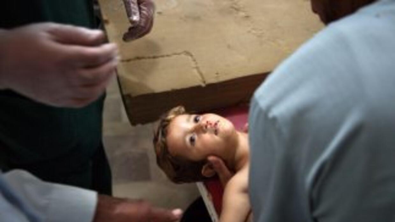 El gobierno sirio ha negado el uso de armamento químico en Guta, donde l...