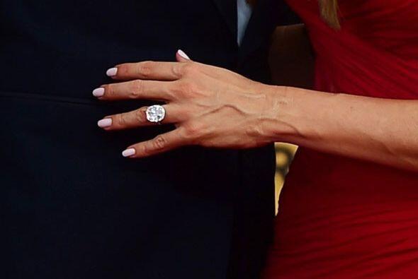¡Su anillote de compromiso!