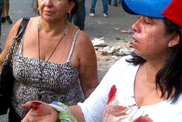 Corrió la sangre en las calles de Venezuela 8d83d48cc2d34a26bcc39c966c00...