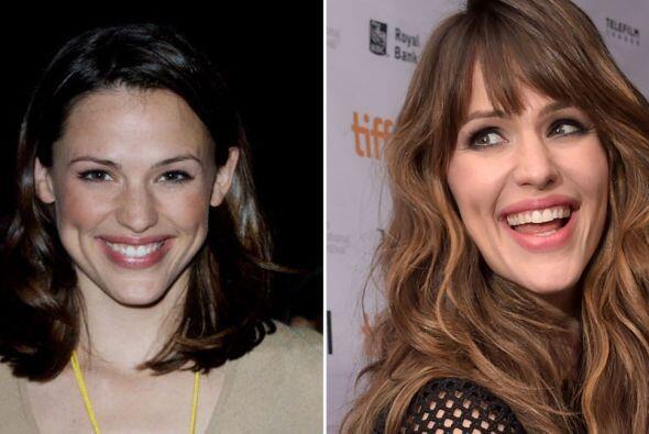 Ahora la hermosa actriz ya no luce unas encías prominentes.