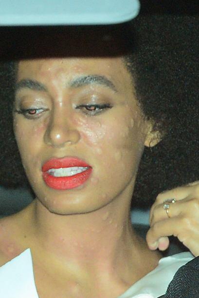 ¡Pobre Solange! Nadie quiere tenerni ser vista con el rostro así el día...