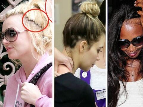 Por usar demasiadas extensiones y hacer cambios radicales en su cabello...