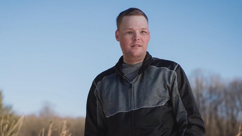 Un trasplante de rostro le cambia la vida a un joven que había intentado...