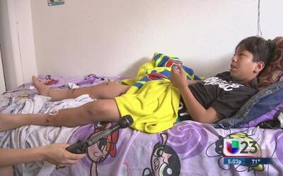 Perro bulterrier ataca a un niño de 13 años