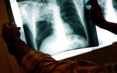 Este 24 de marzo es Día Mundial de la Lucha Contra la Tuberculosis
