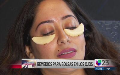 Un minuto contigo: Remedios contra bolsas en ojos