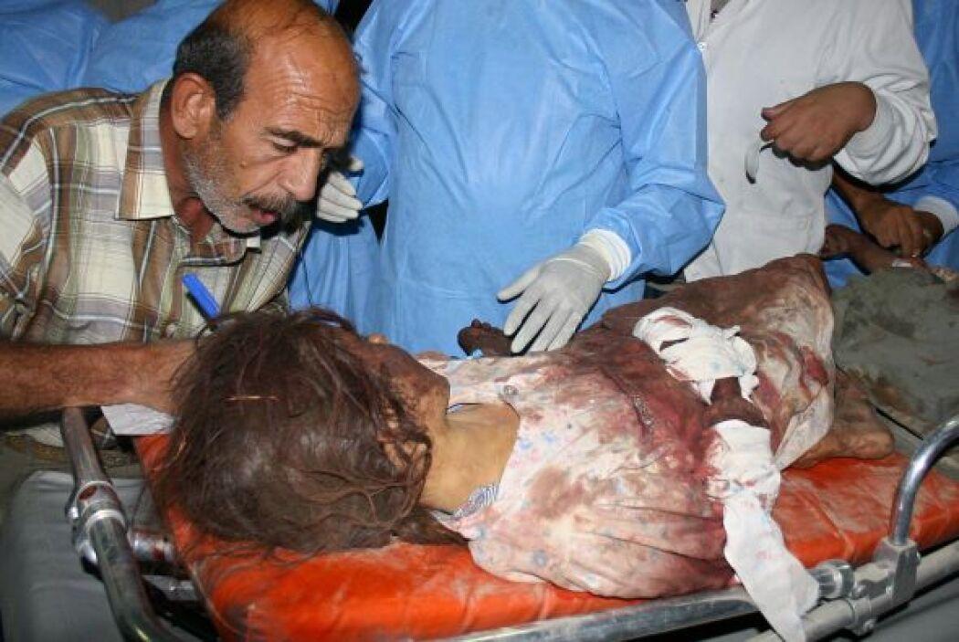 Se estima que hasta un millón de víctimas civiles han perecido solo en I...