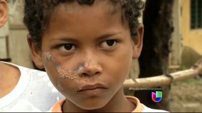 Familiares de los niños muertos en un autobús en Colombia exigen justicia