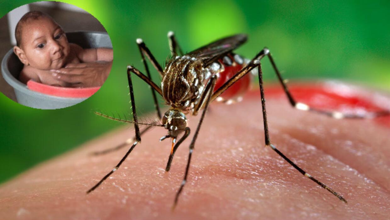 Virus zika y la microcefalia