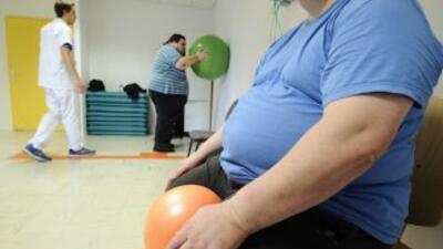 La obesidad aumenta el riesgo de cardiopatías, diabetes, trastornos auri...