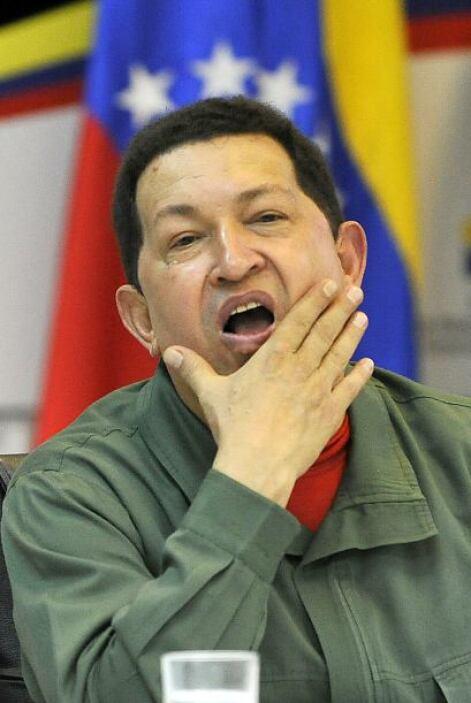 Ante los rumores de que el presidente venezolano Hugo Chávez está empeor...