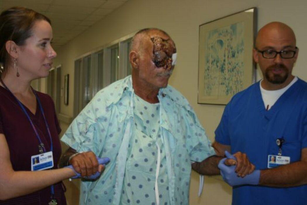 Ronald Poppo, ahora de 65 años, fue atacado por Rudy Eugene mientras est...