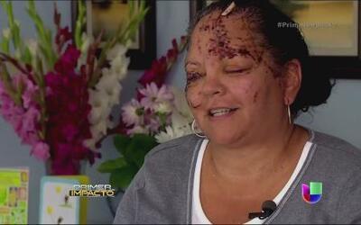 Abuela y su nieto sufrieron brutal ataque de una nutria