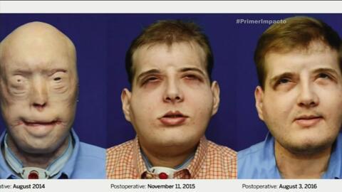 Hombre que recibió un trasplante de cara muestra el resultado final