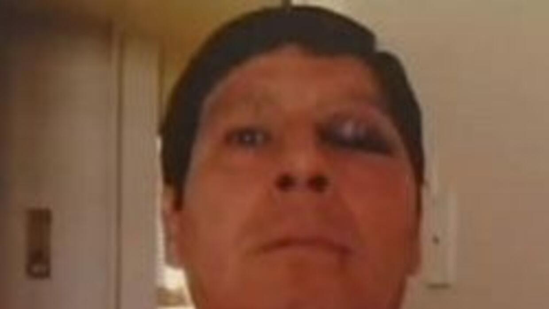 Peruano Jorge Retamozo se recupera luego de haber vivido un crimen de od...