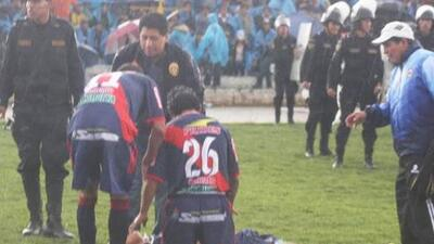 Joao Contreras, jugador del Sport Águila, sufrió quemaduras de segundo g...