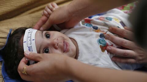 Especialistas evaluaron cerca de 400 bebés con microcefalia