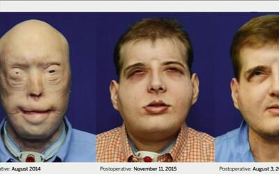 Cirujano hispano le cambió literalmente la cara al infierno que vivía un...
