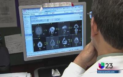 Estos son los síntomas de la esclerosis múltiple