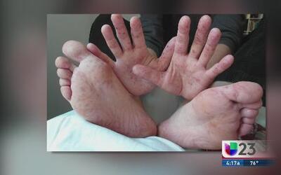 La enfermedad de los pies, manos y boca