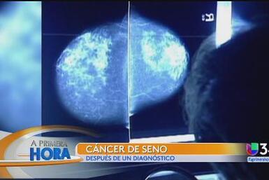Prevención del cáncer del seno