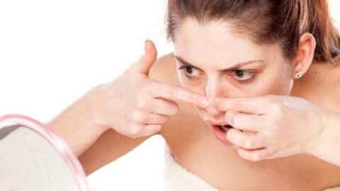 acne alimentos