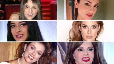 Las actrices que le han dicho sí a las cirugías