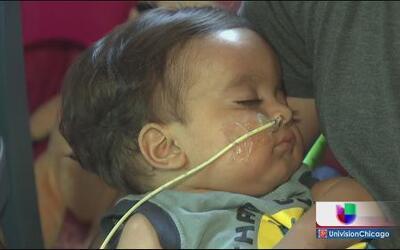 Niegan transplante a bebé guatemalteco