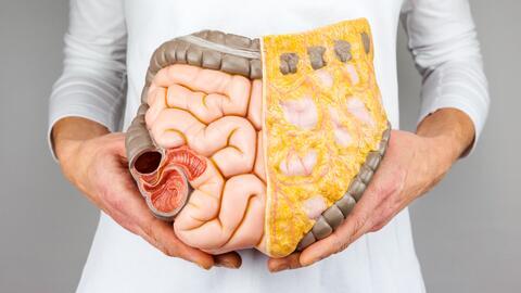 Cáncer de colon: Síntomas que no debes ignorar y cómo puedes prevenirlo