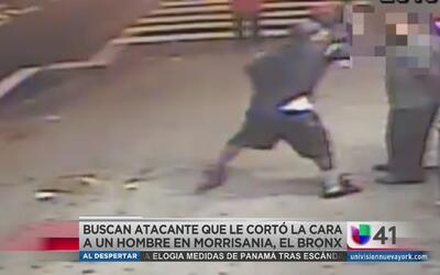 Le cortan la cara a un hombre en el Bronx