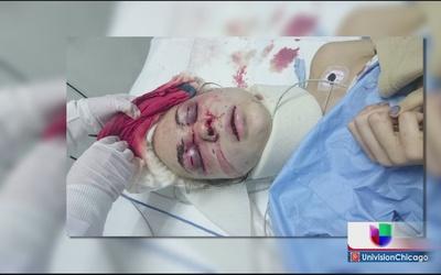 Nieta de Cantinflas es víctima de violencia doméstica